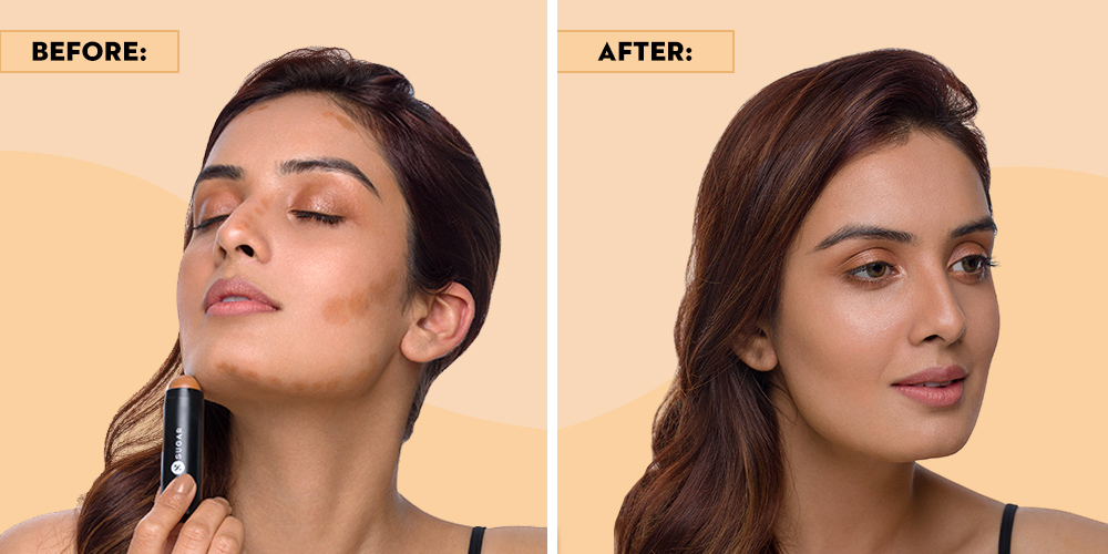 Before and After Face Contouring